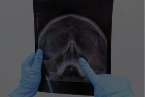 Rhinology & Anterior Skull Base Surgeries